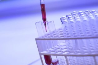 Tubes à essais dont certains se font remplir d'un liquide rouge