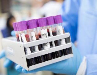 Personne en tenue d'hôpital portant des flacons de tests sanguins